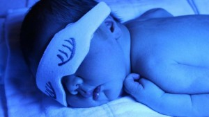 Ίκτερος και μωρό
